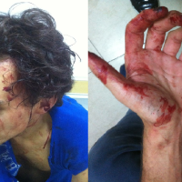 French man assaulted in Shanghai. Photo from Shanghaiist.